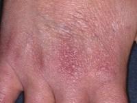 aca-afbeelding-handen-late-symptoom-lyme
