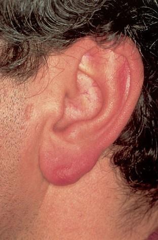 borrelia-lymfocytoom-1-oor
